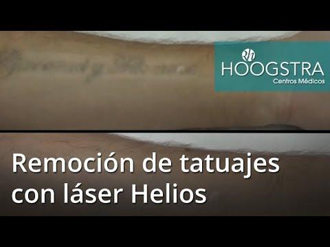 Remoción de tatuajes con láser Helios (18035)