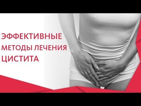 Признаки цистита и лечение. 💧 Признаки и современные методы лечения цистита. 12+