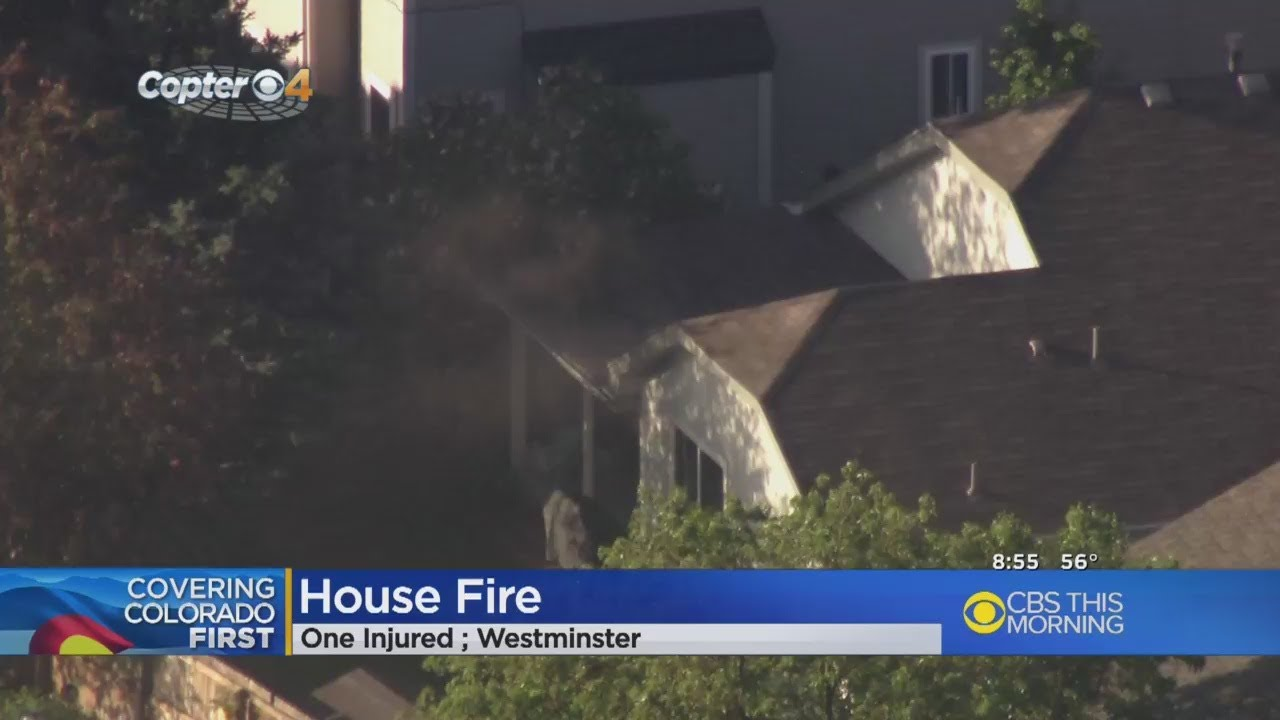 1-seriously-hurt-in-house-fire