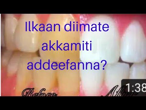 How to whiten my teeth at home (Ilkaan diimate akkamiti akka addefannu)