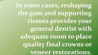 Cosmetic Crown Lengthening to Correct a Gummy Smile in Southfield, MI