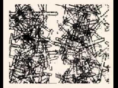 Elugelab – Pieces
