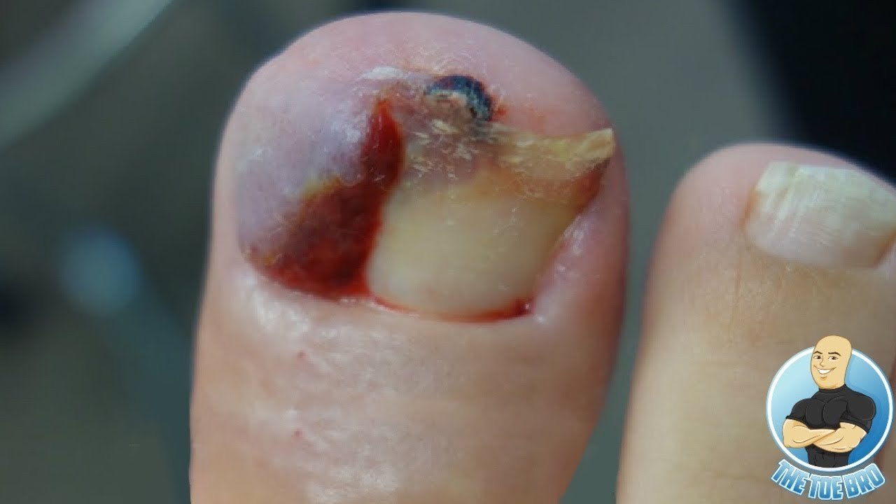 IS HER OVERGROWN INFECTED TOENAIL BACK?!?! ***3 YEARS LATER***