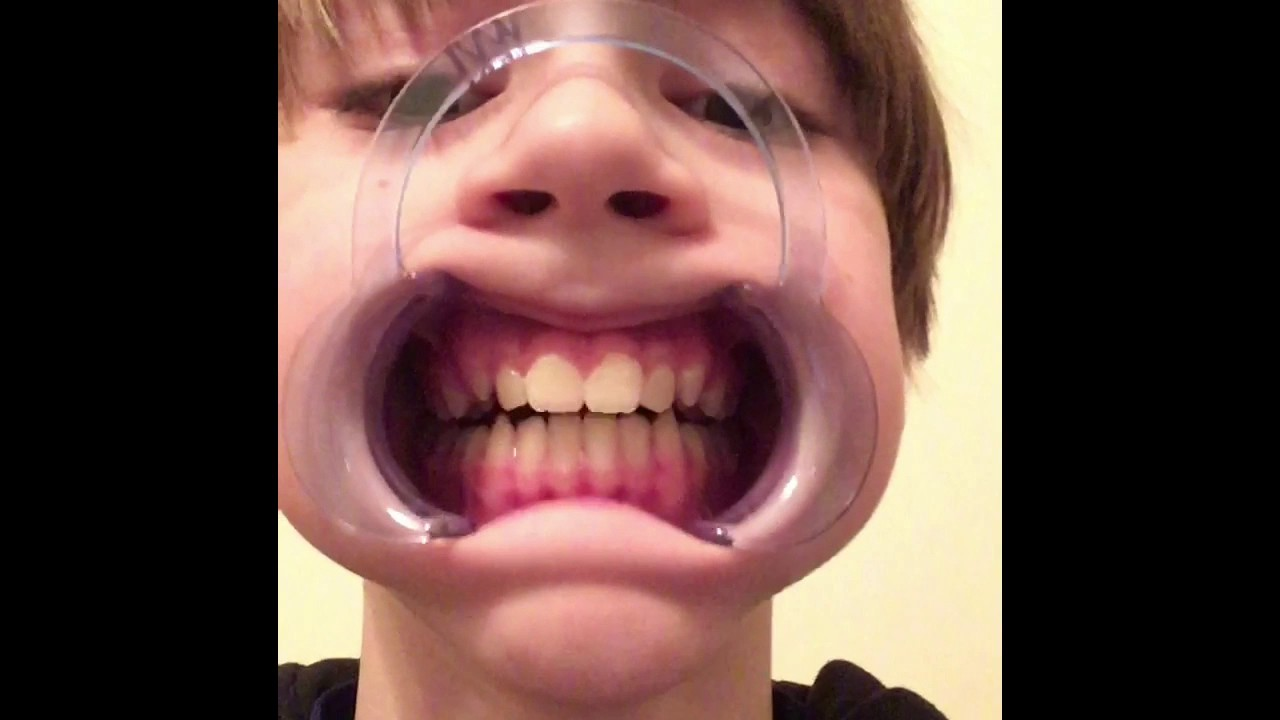 Mouth Guard Challenge Hard Word To Say Youtube