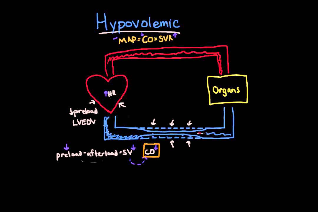 hypovolemic shock - youtube, Skeleton