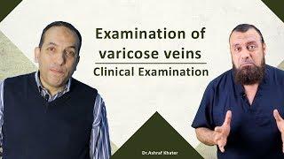 Examination of varicose veins- Clinical Examination