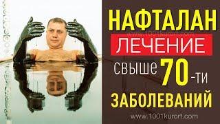 Нафталановые ванны. Рекомендации главврача санатория Чинар Нафталан, Азербайджан.