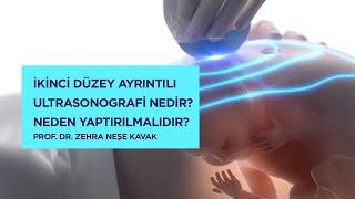 İkinci Düzey Ayrıntılı Ultrasonografi Nedir? Neden Yaptırılmalıdır? - Prof. Dr. Zehra Neşe Kavak