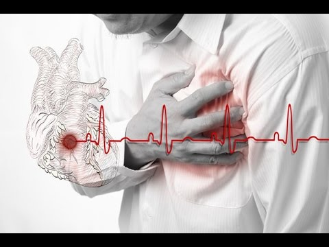 Инфаркт миокарда - симптомы, лечение, профилактика