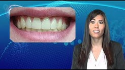 Teeth Whitening Options - Cosmetic Dental Associates San Antonio, TX