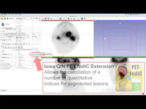 Positron Emission Tomography (PET) quantification using 3D Slicer