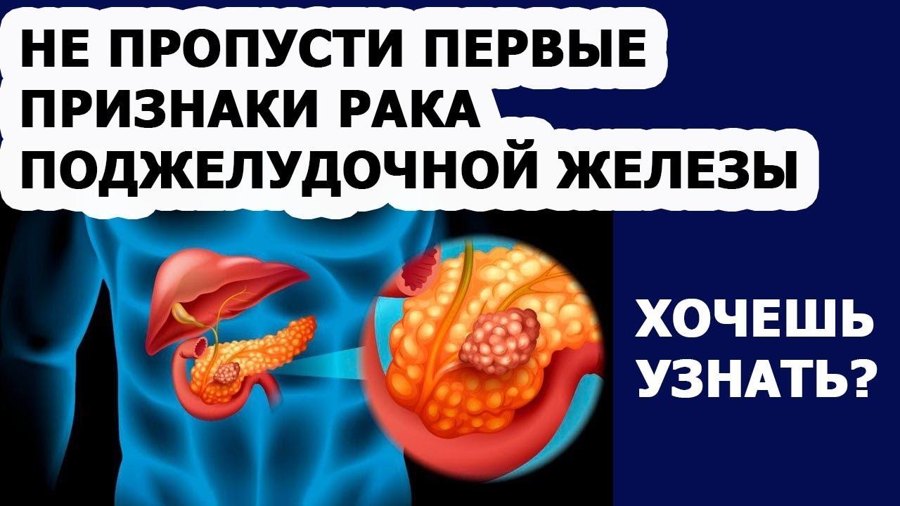 Онкология Симптомы и признаки рака поджелудочной железы