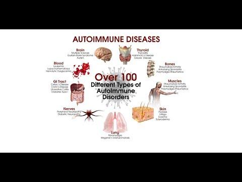 Environmental Triggers in the Development of Autoimmune Diseases