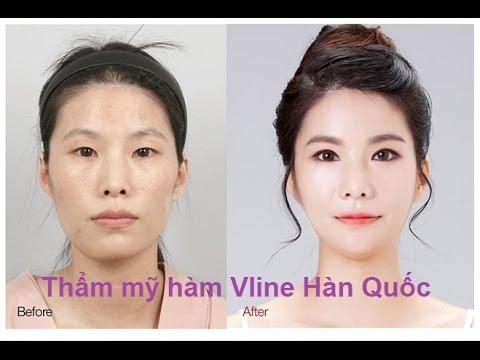 trước và sau thẩm mỹ Hàn Quốc