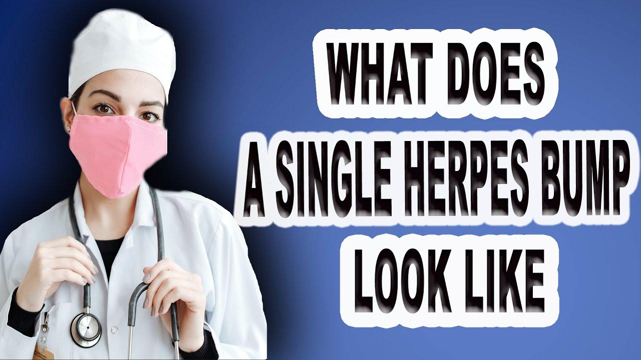 Herpes bumps or Distinguishing Between