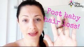 Hair loss after pregnancy - Katy