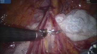Robotic inguinal hernia.