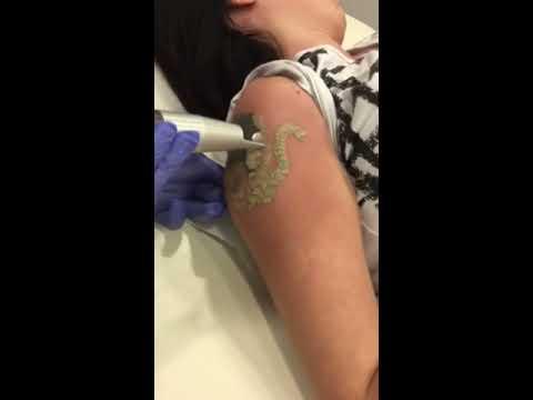 Laserowe Usuwanie Tatuażu łódź Laser Tattoo Removal