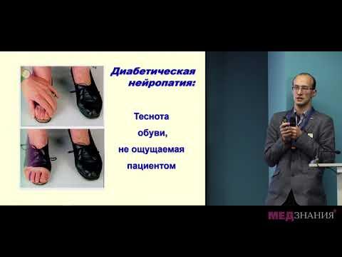 Синдром диабетической стопы в практике эндокринолога и терапевта