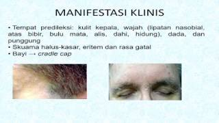 5 Bahan Alami untuk Atasi Dermatitis Seboroik.