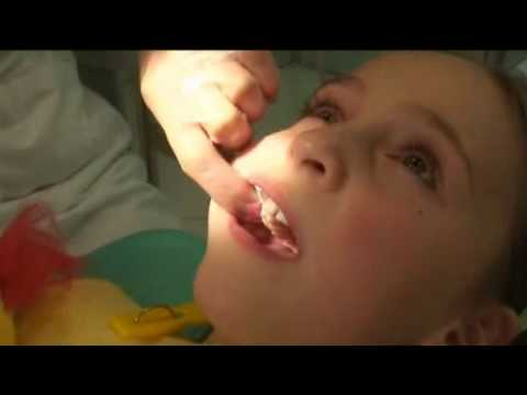 Bezbolestné ošetření zubního kazu ozonem na Doctor-TV
