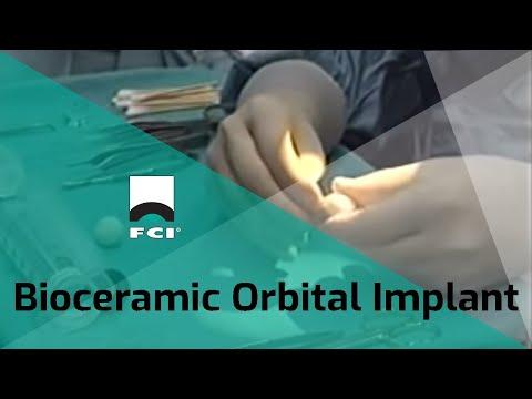 Bioceramic Orbital Implants - Dr. David Jordan