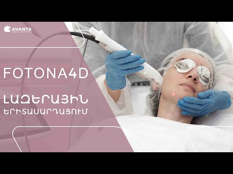 Ինչպե՞ս է իրականացվում Fotona4D լազերային երիտասարդացումը