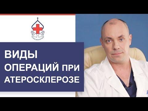 👣 Первые признаки и лечение атеросклероза нижних конечностей. Атеросклероз нижних конечностей. 12+