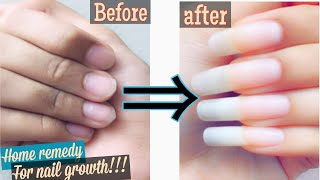 EASY home remedy for FASTER NAIL GROWTH!!!!!! My nail care routine  basic nail art tutorial