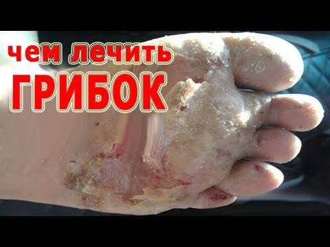 ★ How to cure FROGEN on toes. Proper care for the infected nail. The best advice from Mikoz.