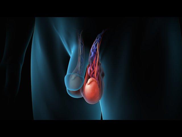 varicoză simptome la bărbați
