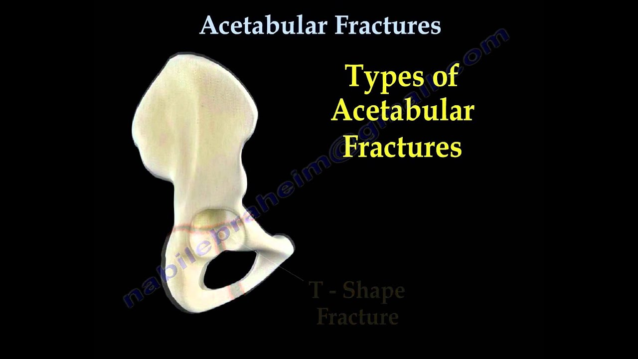 Acetabular Fractures Everything You Need To Know Dr Nabil