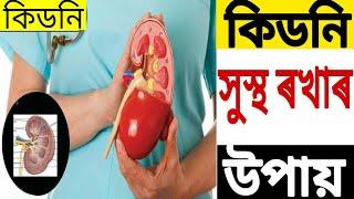 কিডনী সুস্থ ৰখাৰ উপায় ৷Healthy kidney. By RB Tips