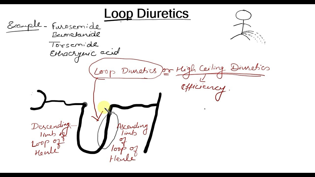 Loop Diureetti