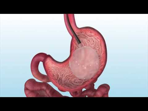 How an ORBERA™ stomach balloon is removed