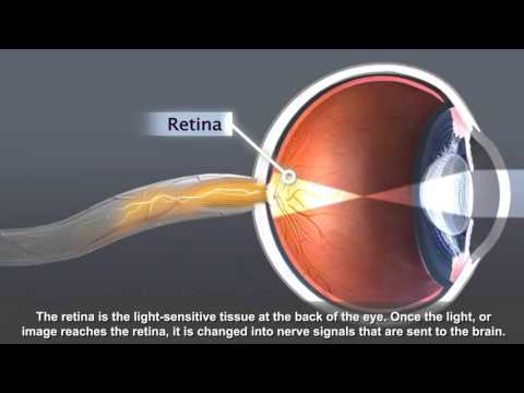Animation: Cataract