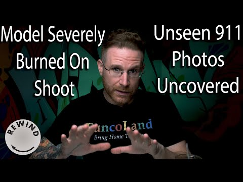 Model Physically Burned On Shoot,  New Gear From Hasselblad & more Adorama Rewind 6/24/19