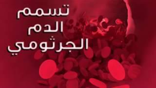 كم حالة تصاب بتسمم الدم في العالم سنويًا ؟