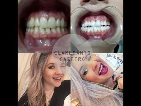 Clareamento Caseiro Com Dentista Youtube