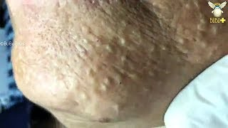 How To Remove Acne For Clear Skin - Old Age Blackheads Removal On The Face with Relaxing Music 12677