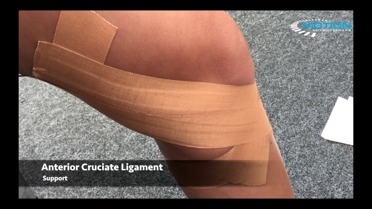 How to tape a knee - ACL / anterior cruciate ligament sprain ...
