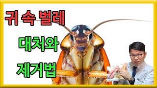 귀에서 벌레 제거와 대처법 | ear insect re…