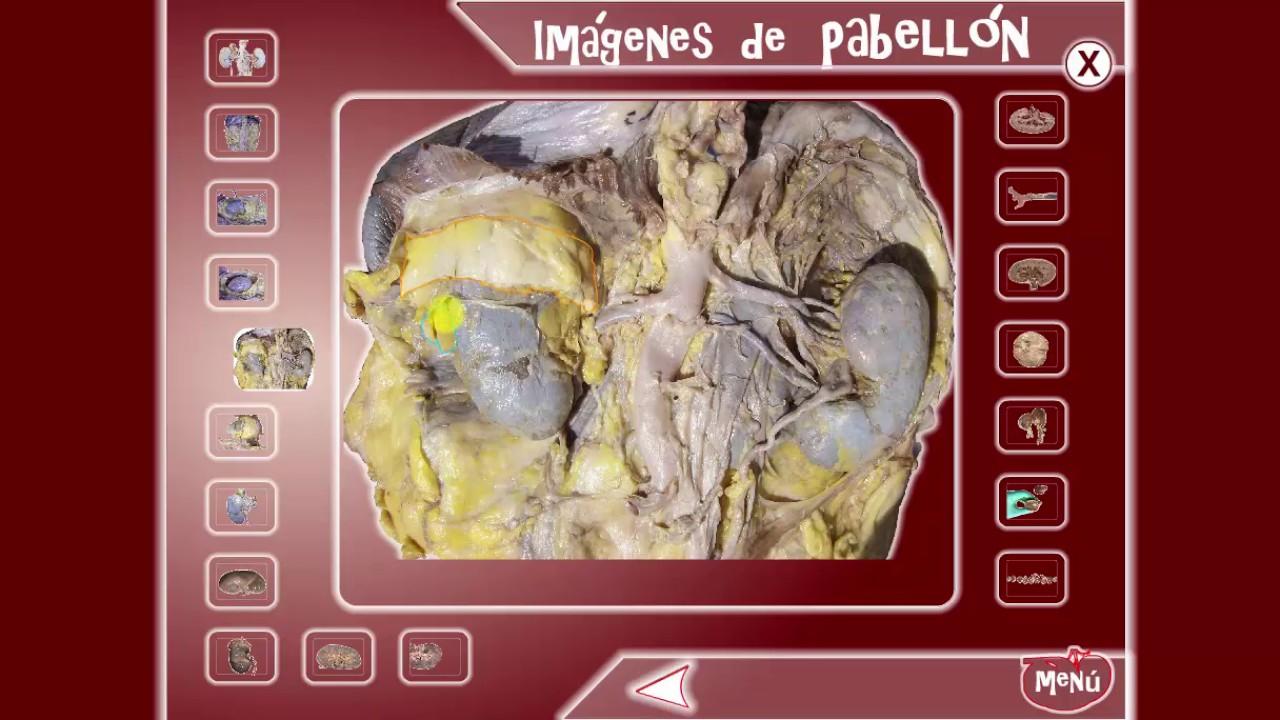 Anatomía del Riñón: Glándulas Suprarrenales - Imagenes de Pabellon ...