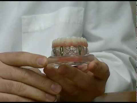 Macomb County, MI Dental Implants- The New Denture Replacement?
