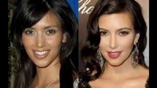 Antes y después de los Kardashian/ Before and after the kardashian