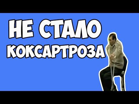 Коксартроз тазобедренного сустава: симптомы, лечение