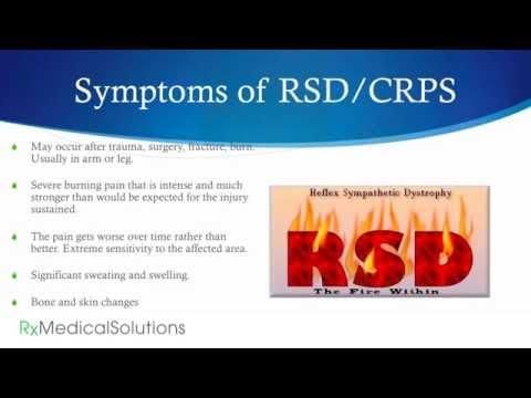 CRPS RSD Pain Relief - Complex Regional Pain Syndrome