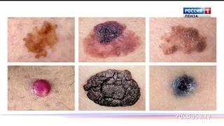 «Быть здоровым  здорово»: как предотвратить рак кожи