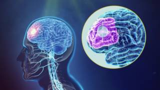 Magstim - An overview of TMS (Transcranial Magnetic Stimulation)?