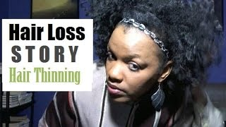 Thinning Hair Loss Story   Hair Shedding & Thin Natural Hair Due To Stress   Remedy Grow Hair Back